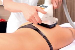 Процедуры против лишнего веса