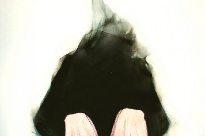 Дима Ребус «Вся фишка в слабоумии»