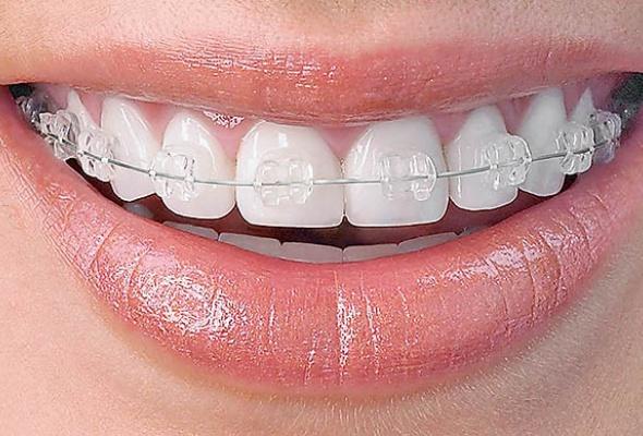 Зубная фея - Фото №2