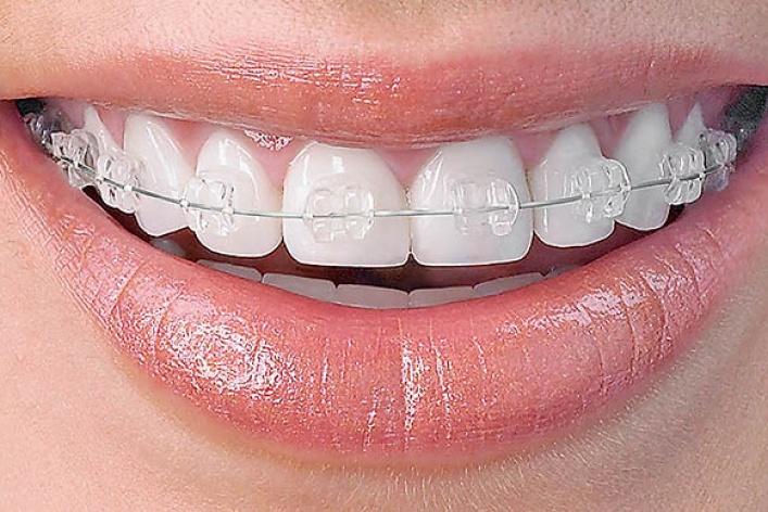 Зубная фея