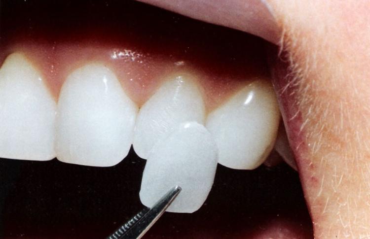 Новые стандарты красоты: Зубы Фото №428955