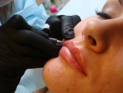 Как увеличить губы за 40 тысяч рублей