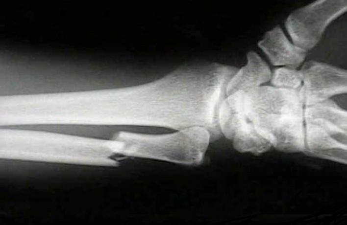 Пенсионерка отсудила 70 тысяч у метро за сломанную руку