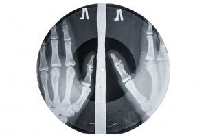 «Музыка на костях»